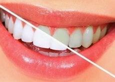 10 alimentos para clarear os dentes naturalmente