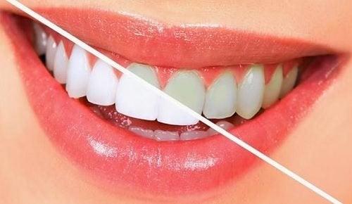 Para Clarear Os Dentes Naturalmente 10 Alimentos Melhor Com Saude