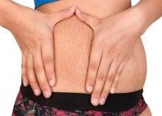 2 alternativas naturais para tratar das estrias