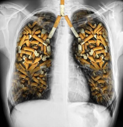 Danos do cigarro aos pulmões