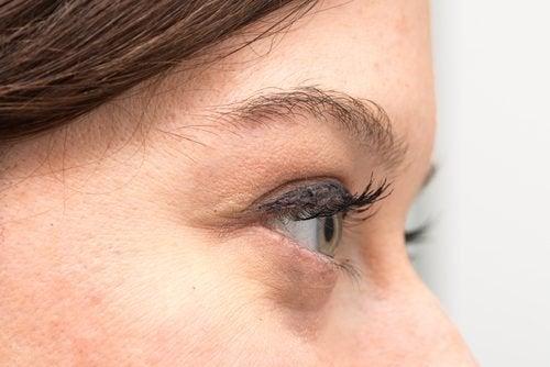 Descubra porque você tem olheiras e como tratá-las naturalmente