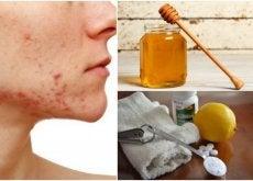 6 remédios naturais para enfrentar a acne cística
