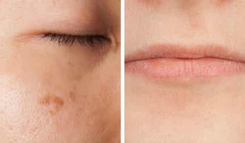 5 sintomas de deficiência de vitaminas que podem ser lidos em seu rosto