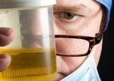 8 razões para o mau cheiro na urina