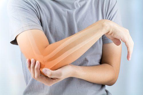 5 alimentos para prevenir a artrose