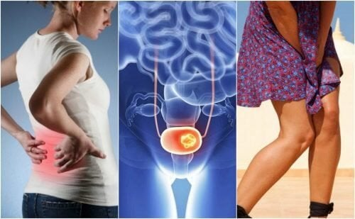 Câncer de bexiga: 7 sinais que devemos ficar atentos