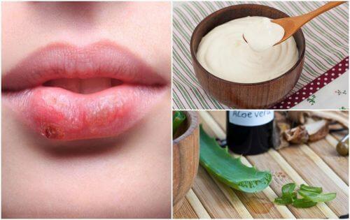 7 tratamentos naturais contra o herpes labial