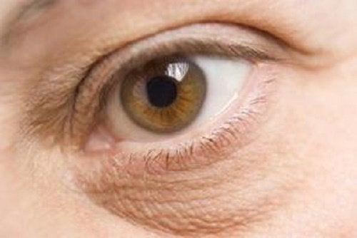 Olho com deficiências nutricionais