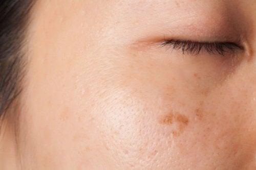 Manchas na pele pode sugerir um sintoma comum de câncer