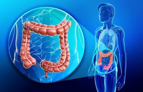 O que é a doença de Crohn?