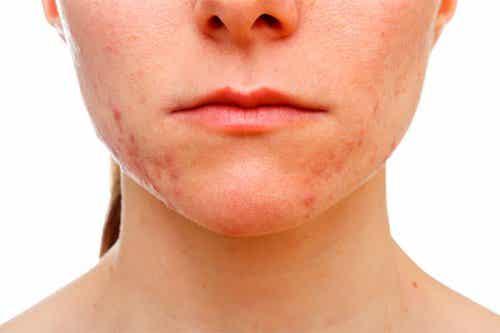 Dicas para eliminar a acne que aparece no queixo