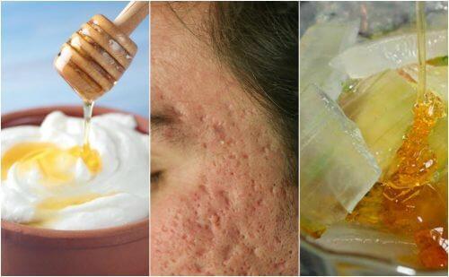 A acne deixou marcas no seu rosto? Reduza-as com estas 5 máscaras naturais