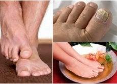 Como identificar fungos nos pés