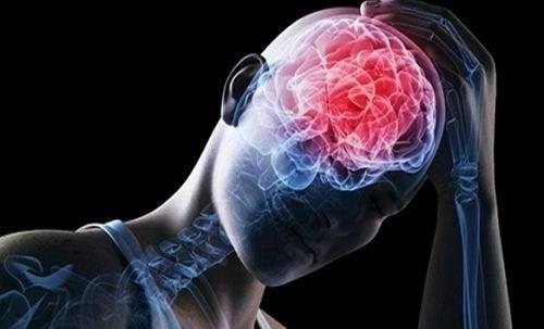 RX de doença cerebrovascular