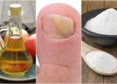 Como combater os fungos nas unhas com vinagre de maçã e bicarbonato