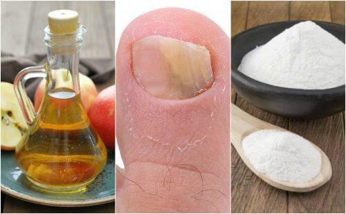 Como combater os fungos nas unhas com vinagre de maçã e bicarbonato de sódio