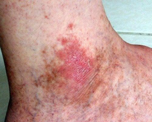 Ter feridas que não cicatrizam pode indicar um câncer de pele