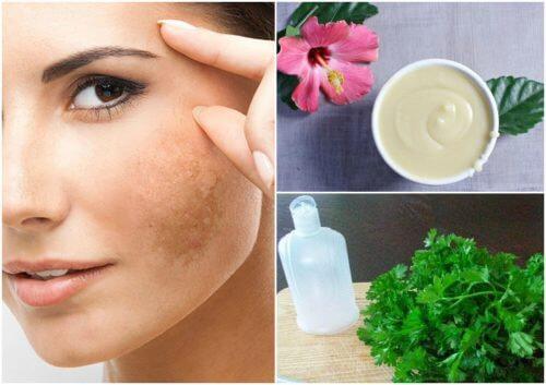 Diminua o melasma em seu rosto com 5 tratamentos naturais