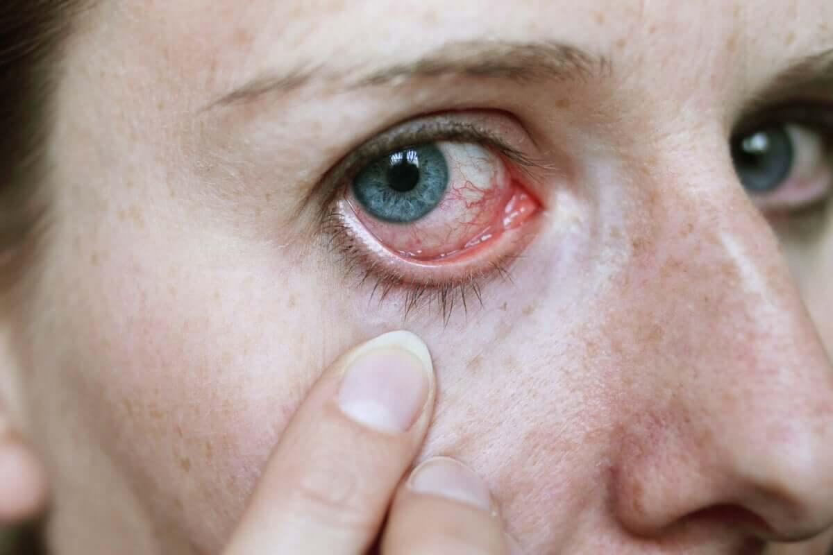 Como tratar as infecções oculares com 5 remédios naturais