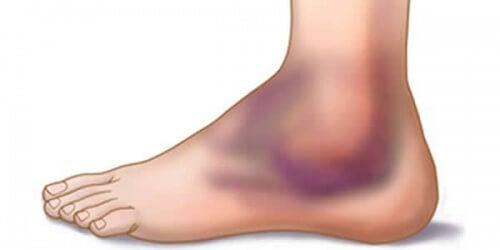 6 dicas para prevenir e tratar torções de tornozelo