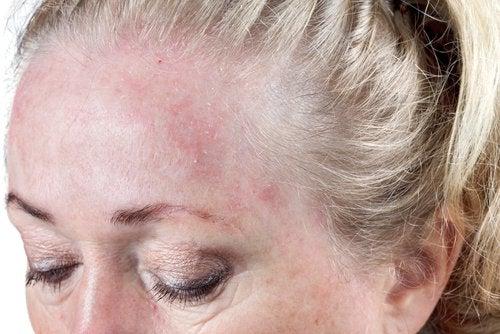 Mulher com erupções na pele