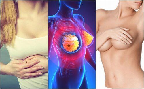 Câncer de mama: 9 sinais que toda mulher deve conhecer