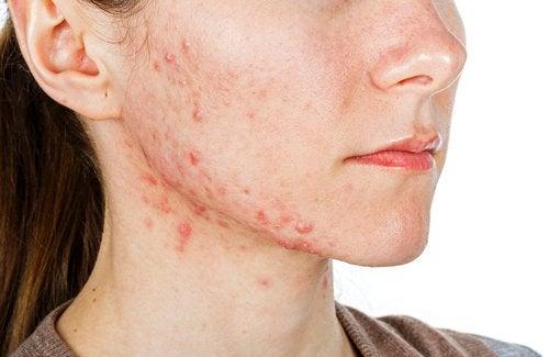 Rosto de mulher com acne