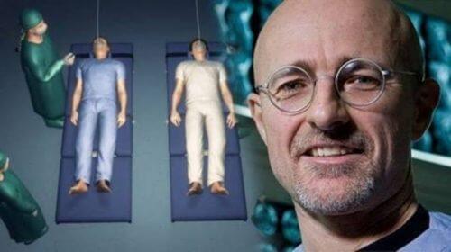 O primeiro transplante de cabeça será realizado em menos de 10 meses