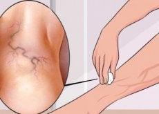 Exercícios para tratar as varizes