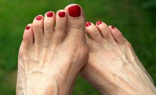 Nódulo no dedão do pé