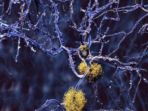 Tipos de demência que não são Alzheimer