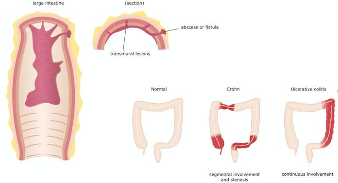 Anatomia da Doença de Crohn