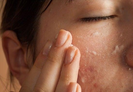 Máscaras com bicarbonato de sódio contra a acne