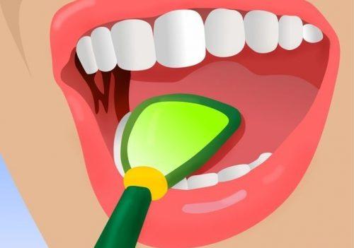 5 truques ideais para combater o mau hálito
