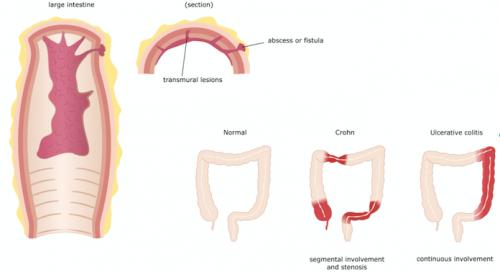 Intestinos em pacientes com Doença de Crohn