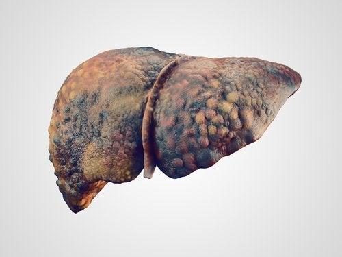 O paracetamol não gera dano no fígado