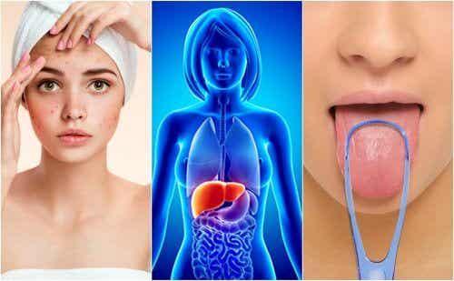 7 possíveis sinais de uma intoxicação no fígado