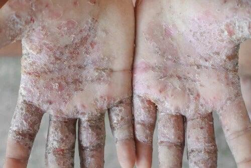 3 remédios caseiros para tratar a sarna