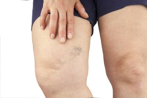 Microvarizes nas pernas