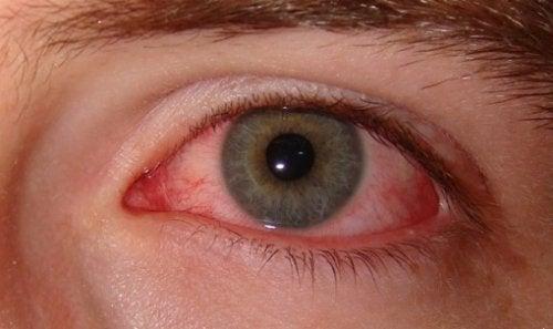 Olho vermelho pela Síndrome do Olho Seco