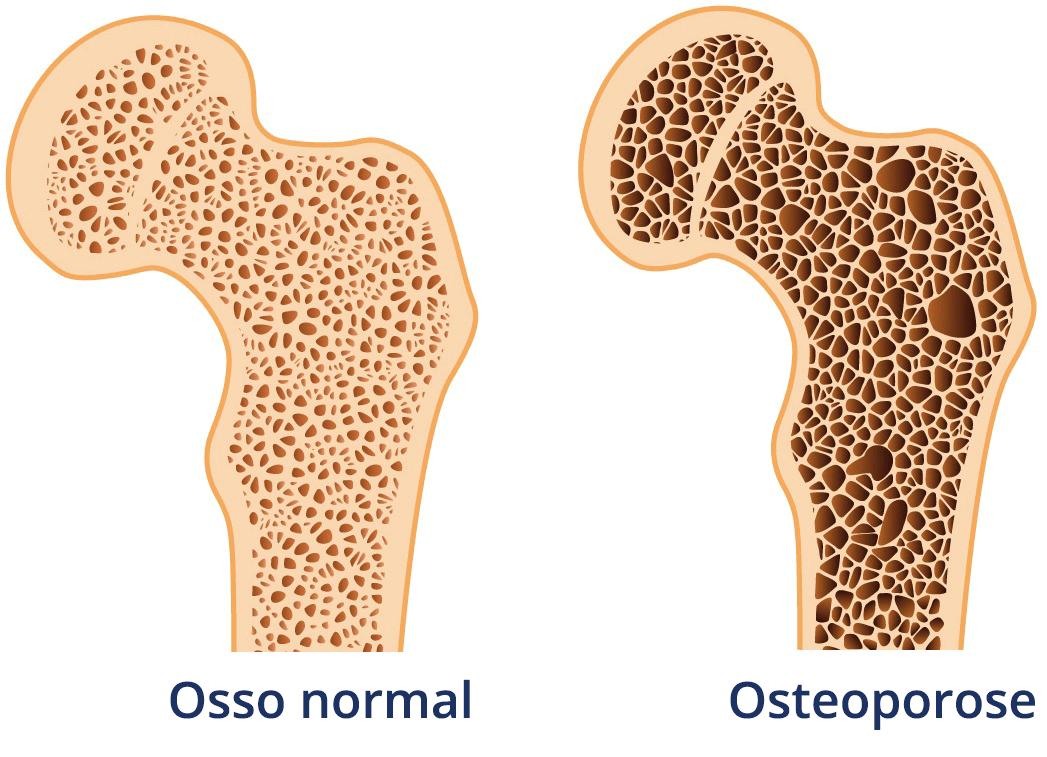 Osteoporose relacionada à Doença de Crohn