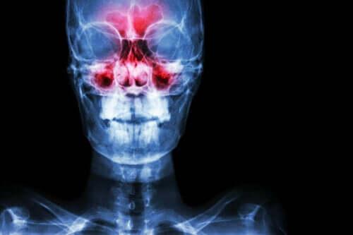 Tudo o que você precisa saber sobre a sinusite