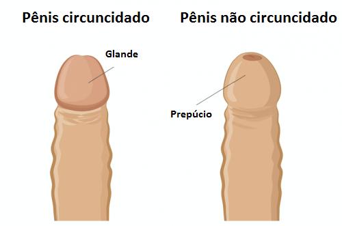 Fimose no pênis