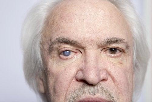 Pessoa cega por causa do lúpus eritematoso sistémico