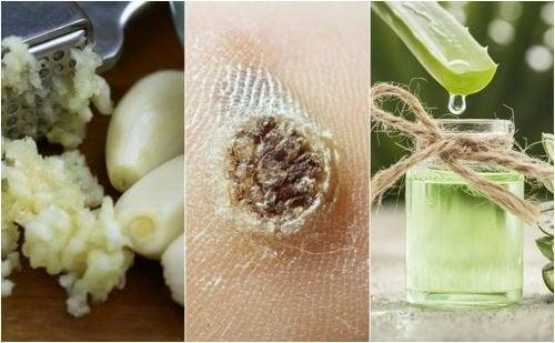 5 remédios naturais para eliminar as verrugas