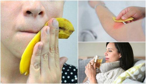 8 interessantes usos da casca de banana