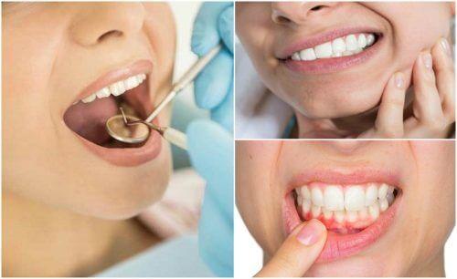 7 sintomas de uma infecção dental