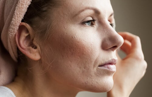 Mulher com pele seca por que não elimina bem as toxinas