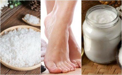 Como reduzir os calos dos pés com 5 remédios naturais