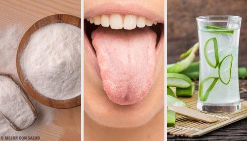 Com estes 8 remédios naturais você poderá se desfazer da língua branca
